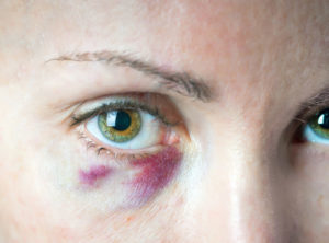 Причины появления синяка под глазом без удара и как его лечить