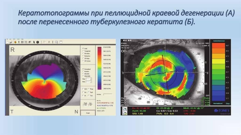 Кератотопография - метод исследования роговицы глаза