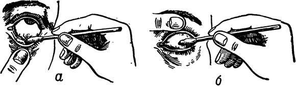 Как закапывать капли в глаза и закладывать мазь для лечения