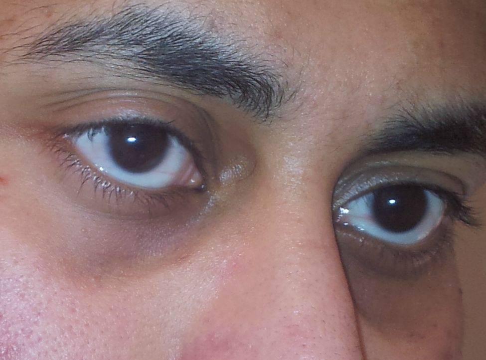 Белые пятна вокруг глаз на веках: что это такое, причины, лечение пятнышек и кругов на коже, удаление, фото, профилактика
