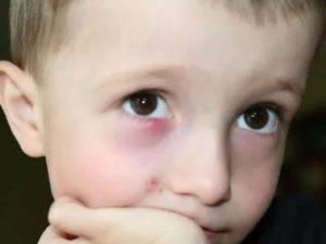 Фурункул на глазу: эффективные методы лечения