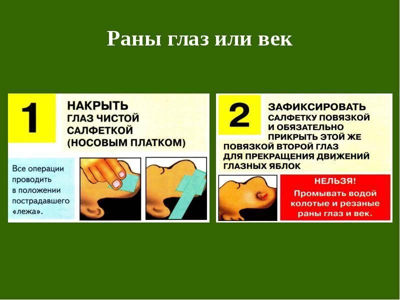 Травмы глаз: лечение в домашних условиях народными средствами при механических ушибах зрительных органов