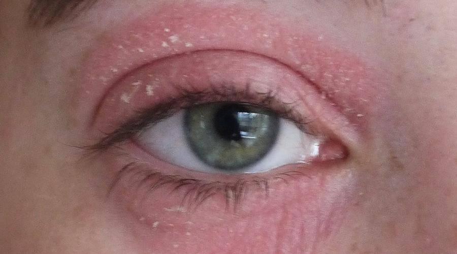 Причины и лечение отека глазного яблока