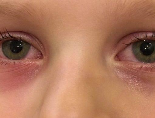 Глаза чешутся и слезятся - что делать, причины, симптомы и лечение