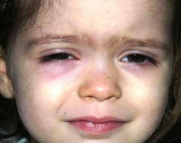 Красные мешки под глазами и круги: причины припухлости на веке, симптомы (раздражение, зуд, чешется), лечение, профилактика