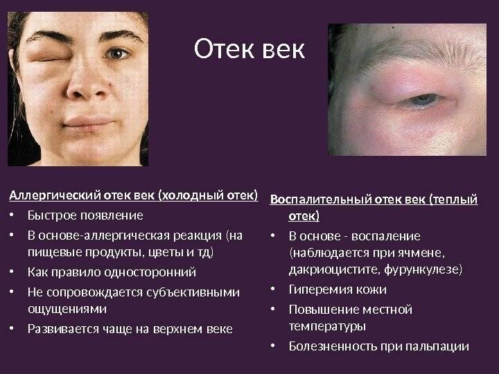 Опухло верхнее веко глаза: причины и лечение, что делать если болит?