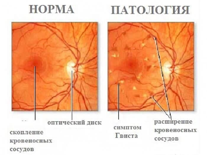 Лечение и прогноз при диагнозе ангиопатия сетчатки глаза по смешанному типу: что делать, чтоб сохранить зрение