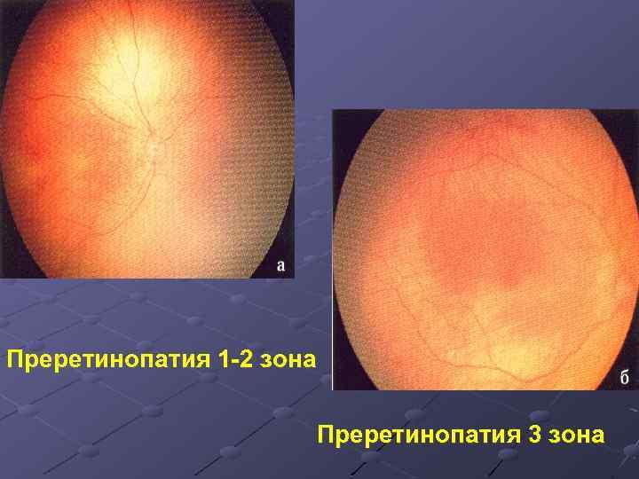 Симптомы и лечение центральной серозной хориоретинопатии - медицинский справочник medana-st.ru