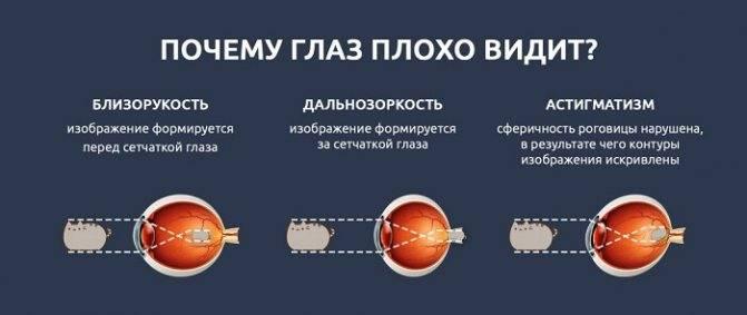 Близорукий – лечится ли миопия и как восстановить зрение при близорукости