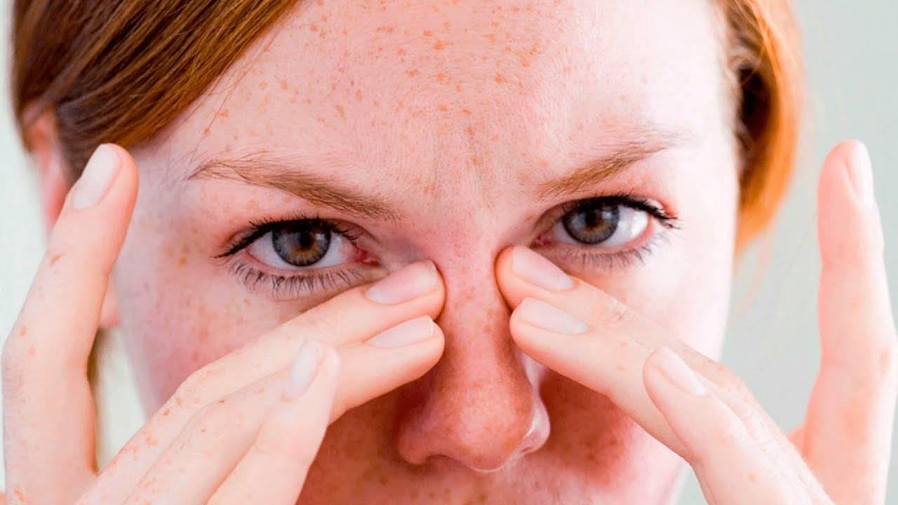 Как снять покраснение глаз: 10 работающих домашних средств - здоровье с headinsider