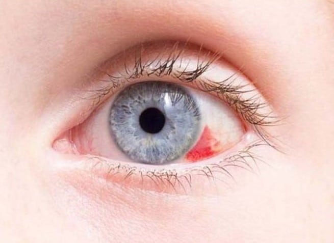 """Красные пятна под глазами у ребенка: причины и методы лечения - """"здоровое око"""""""