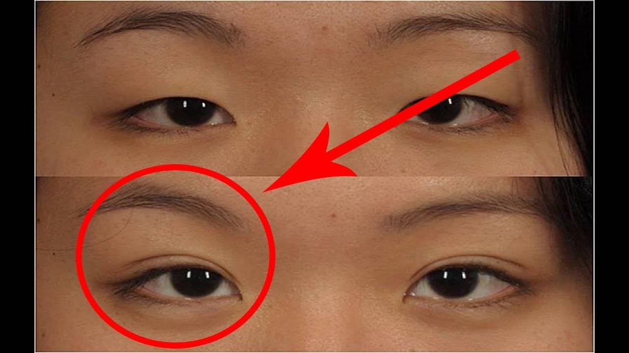 Блефаропластика азиатских глаз, европеизация век, эпикантопластика, фото