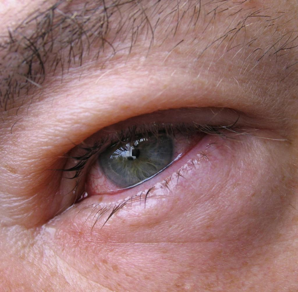 Слезотечение одного глаза причины и лечение - лечим сами