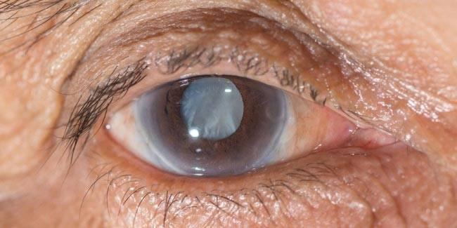 Открытоугольная глаукома: причины, симптомы, лечение, рекомендации, диагностика, виды, что это такое