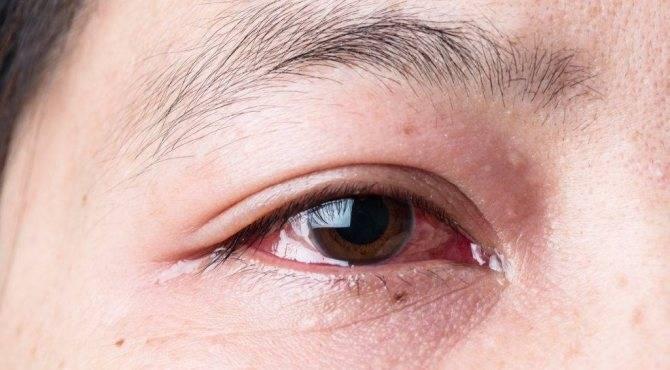 Капли от слезоточивости глаз (для пожилых людей, на улице): топ-10 средств, если текут слезы, названия, описания, цены