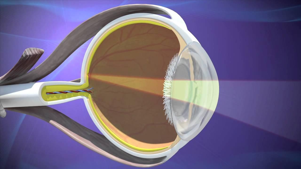 Какой хрусталик лучше при катаракте – советы офтальмолога