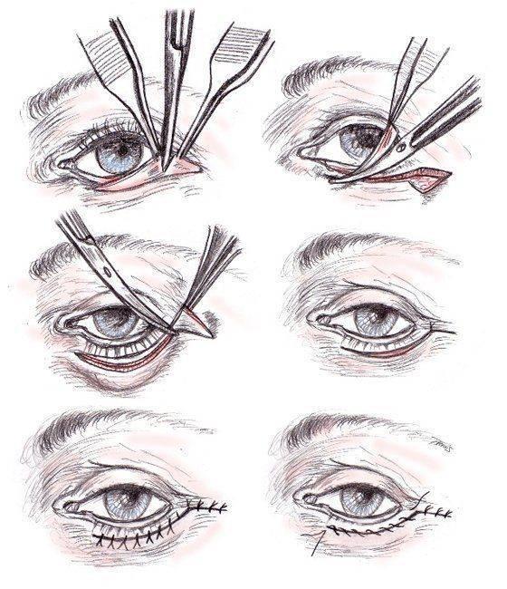 Как вытащить ресницу из глаза: обзор методов и советов