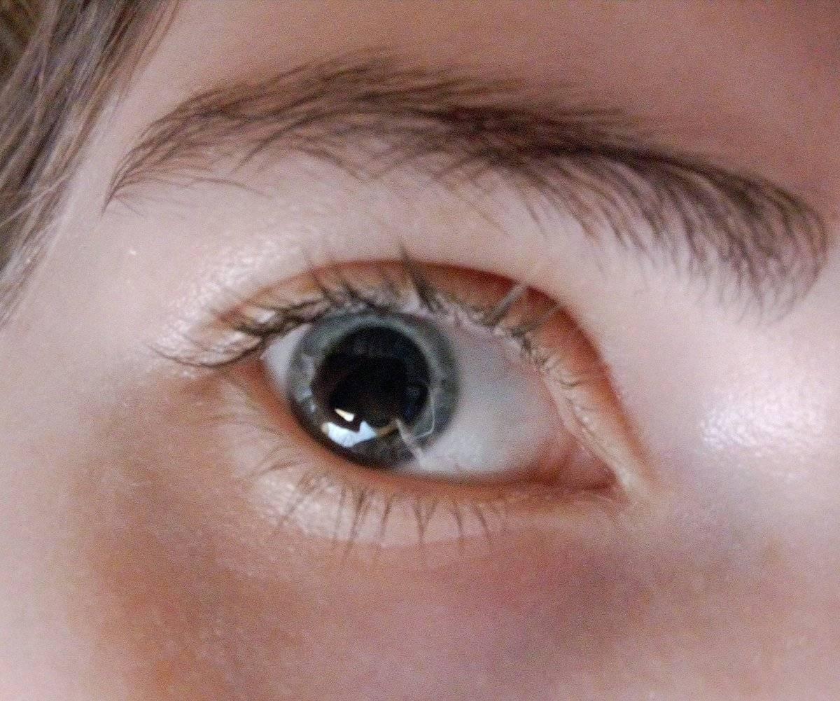 Расширенные зрачки у ребенка: естественные причины и требующие вмешательства врача