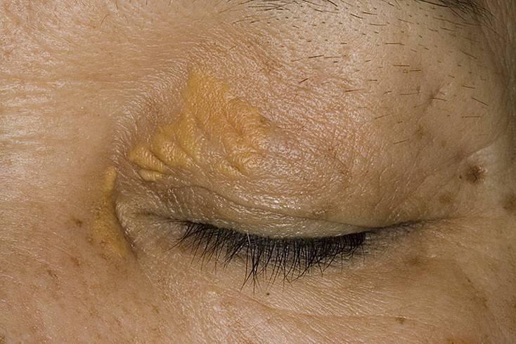 Ксантелазма век – причины, симптомы и лечение (фото)
