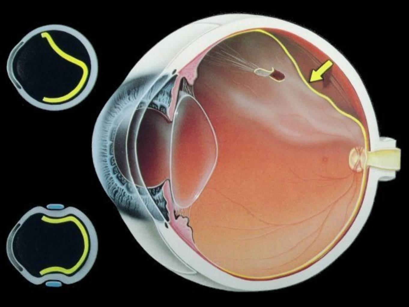 Признаки отслоения сетчатки глаза на фото, причины, последствия и лечение