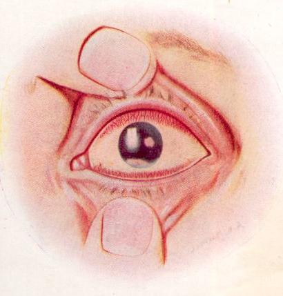 Основные функции конъюнктивального мешка в работе органа зрения