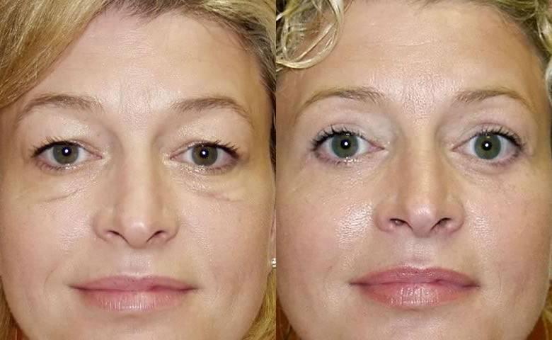 Правильный макияж после блефаропластики - медицинский справочник medana-st.ru