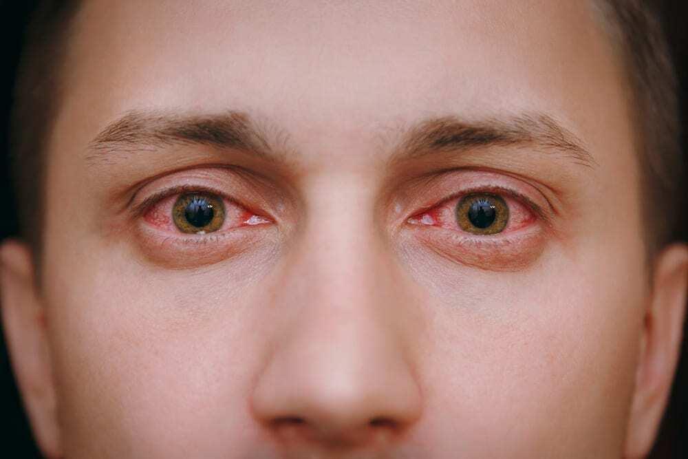 Постоянно красные глаза: причины, почему всегда краснота, что делать, если все время краснеют, не проходят полгода, лечение