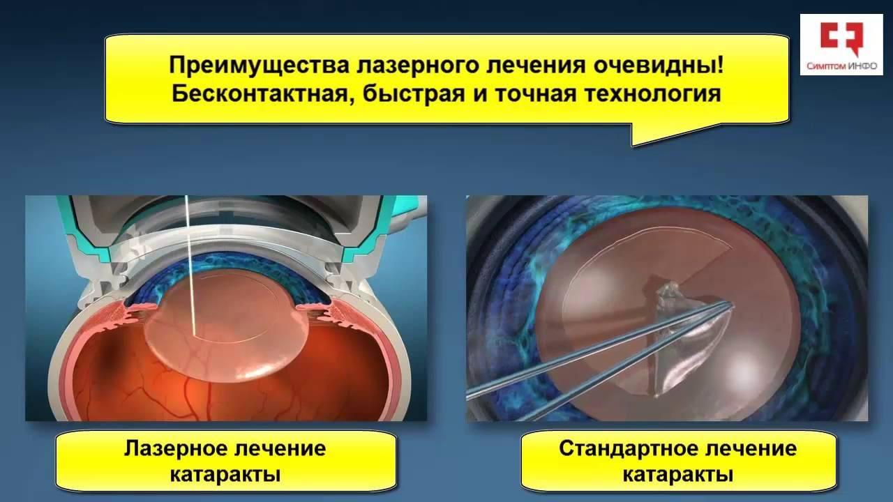 Лечение и удаление катаракты глаз лазером - особенности операции