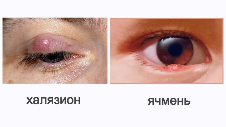 Как убрать ячмень с глаза быстро: лечение,домашние средства