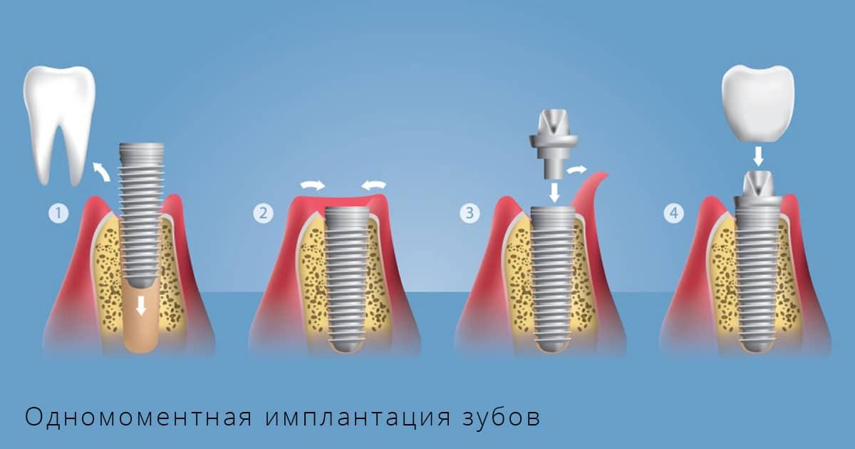 Обзор зубных имплантов производителя astra tech из швеции