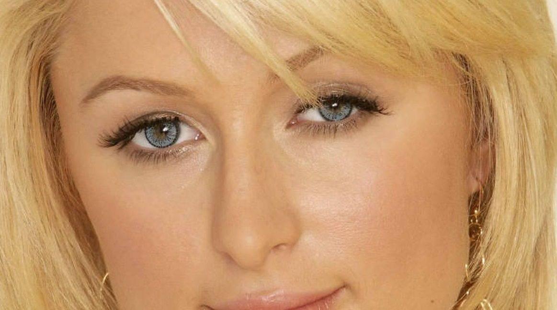 Амблиопия у ребенка: синдром ленивого глаза