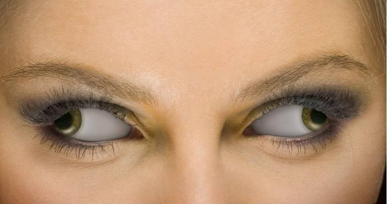 Когда глаза смотрят в разные стороны. причины возникновения этого зрительного дефекта. глаза смотрят в разные стороны!