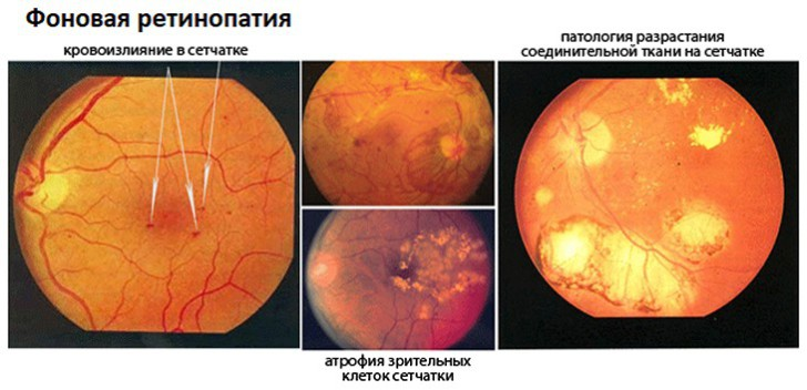 Ретинопатия сетчатки глаза: признаки и лечение oculistic.ru ретинопатия сетчатки глаза: признаки и лечение