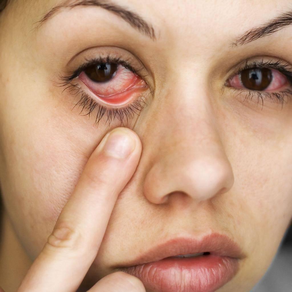 Почему слезится только один глаз: причины и лечение oculistic.ru почему слезится только один глаз: причины и лечение