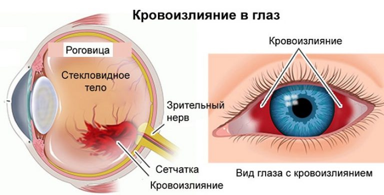 Лопнул сосуд в глазу: что делать, причины и лечение красного глаза