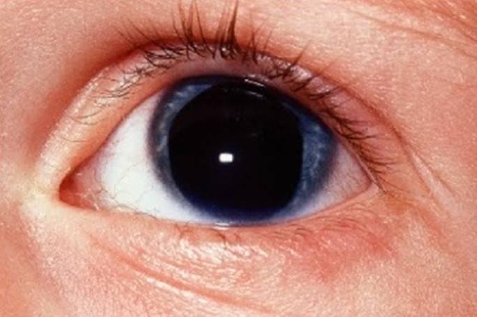 Ретинобластома глаза: симптомы, стадии, лечение, причины и осложнения