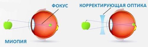 Прогрессирующая миопия: как остановить, лазерная коррекция, очки