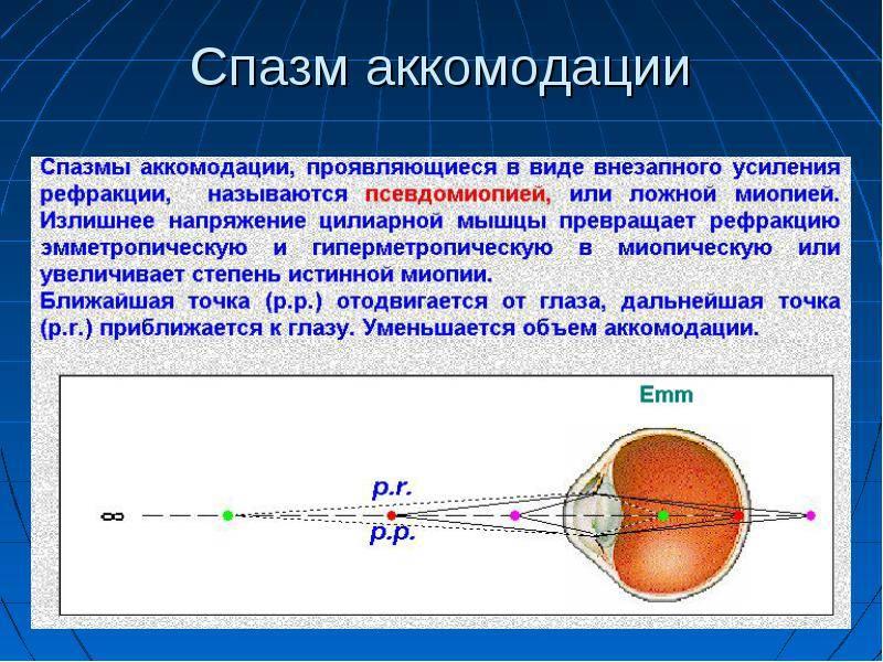 Спазм аккомодации глаз: симптомы и лечение у взрослых