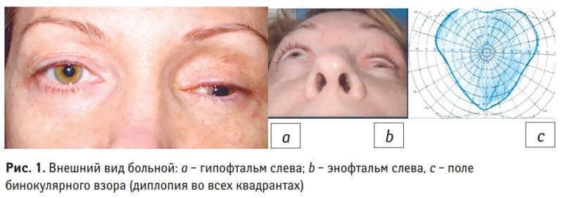 Экзофтальм – не патология, но сигнал о проблемах в организме