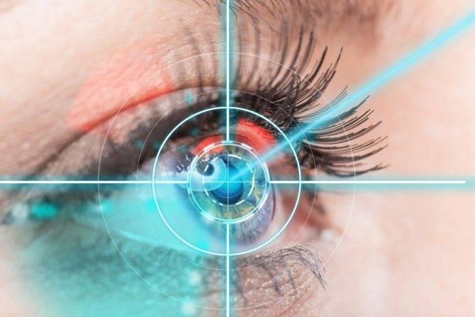 Садится ли зрение после лазерной коррекции?