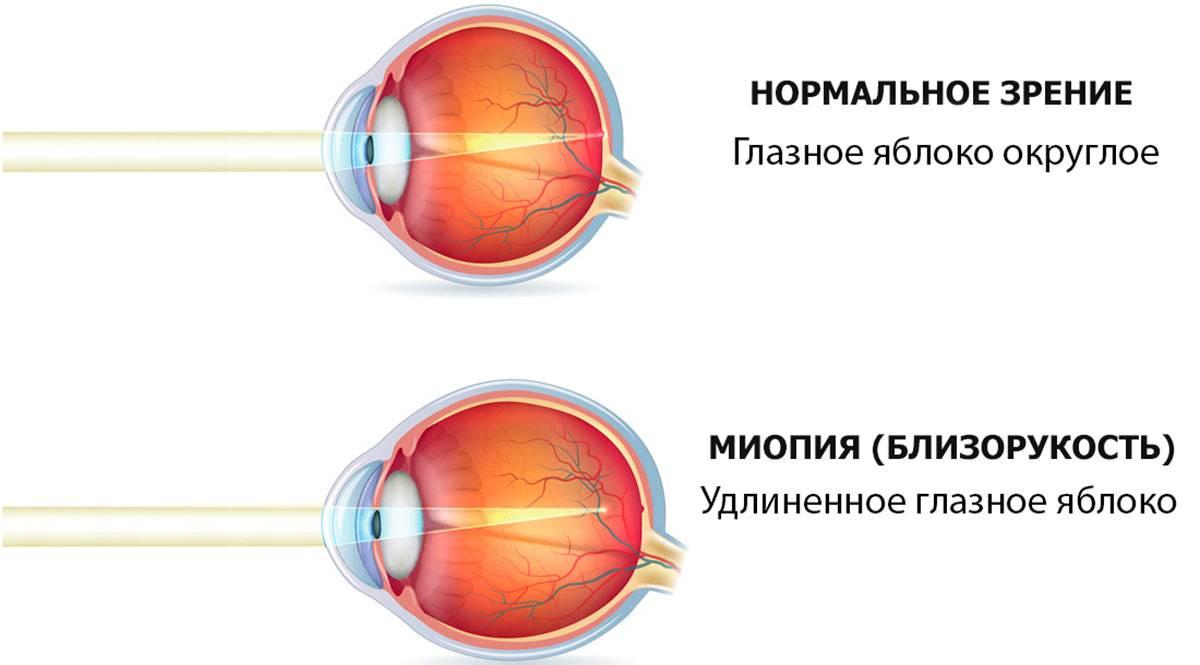 Можно ли заниматься спортом при близорукости | лечение глаз