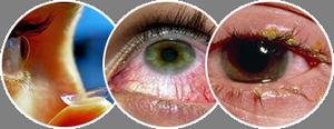 Срок годности линз для глаз в зависимости от вида