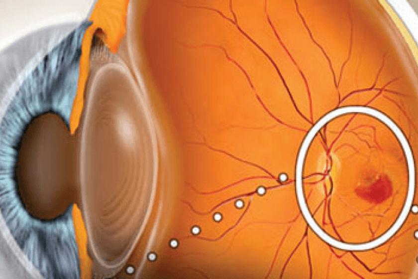 Влажная форма макулодистрофии сетчатки глаза: лечение