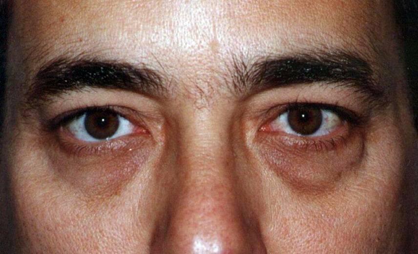Синяки под глазами у мужчин: основные причины появления