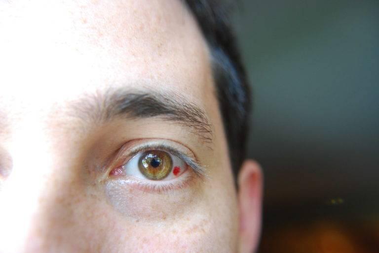 Красные точки вокруг глаз у детей и взрослых - причины, лечение