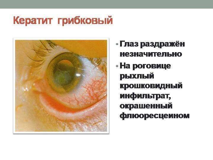 Кератит глаз — симптомы и лечение, фото, причины возникновения у взрослых, у детей