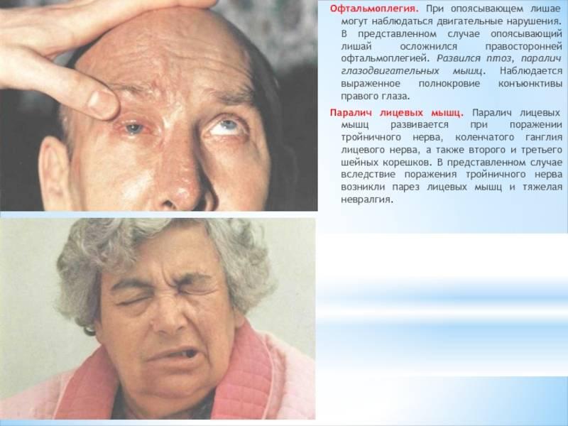 Офтальмоплегия: причины, симптомы, лечение, осложнения и профилактика