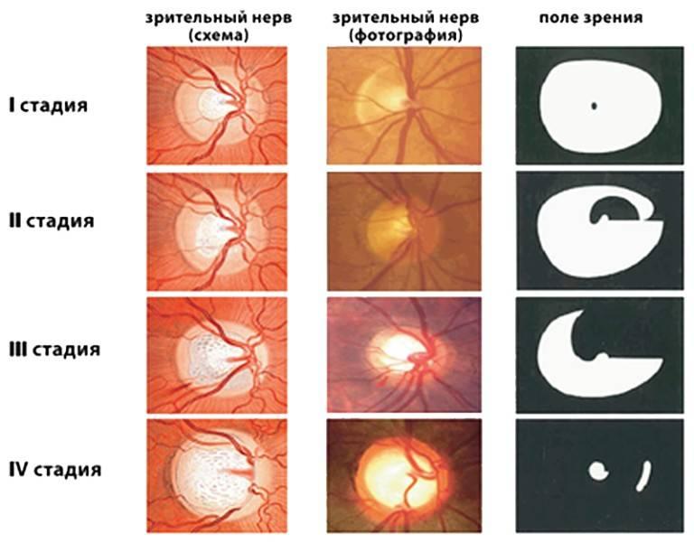 Все о закрытоугольной и открытоугольной глаукомах
