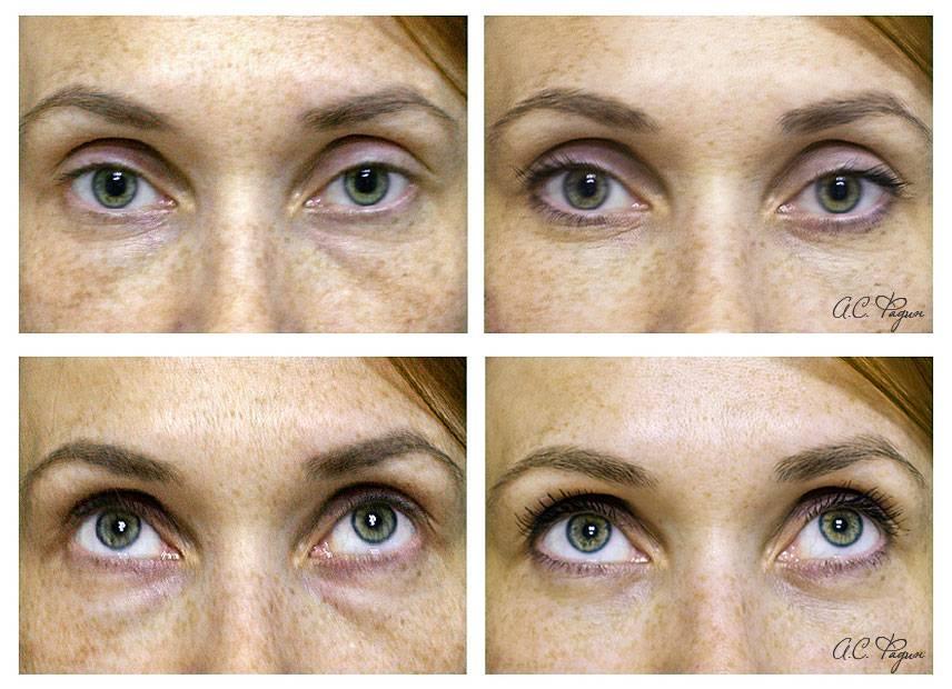Блефаропластика трансконъюктивальная: коррекция зоны глаз (2020)