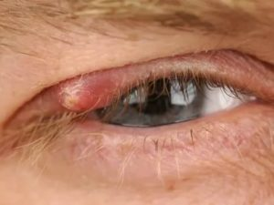 Режет глаза, жжение и слезоточивость: почему появляется и как лечится каплями
